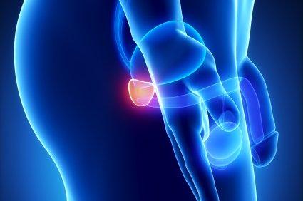 erekcijos prostatos masažas)